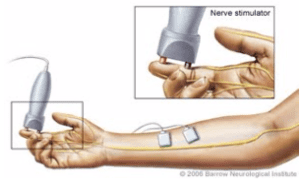 hand nerve graphic with nerve stimulator