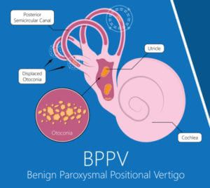 graphic of benign paroxysmal positional vertigo