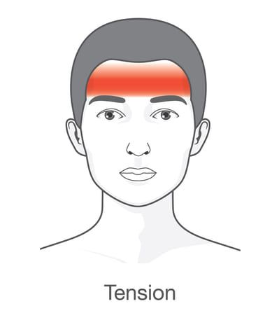 Image result for tension headache picture