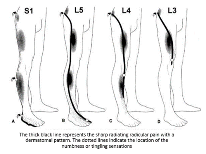 Graphic of different pain patterns that radiates in the leg