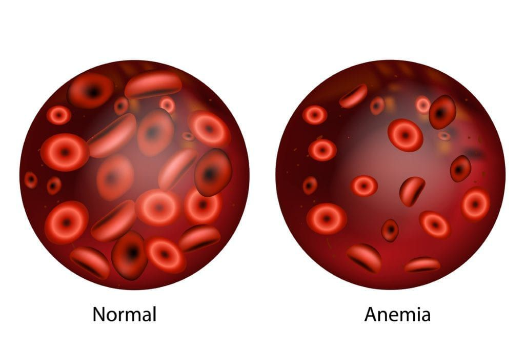 one normal blood sample and one sample with anemia