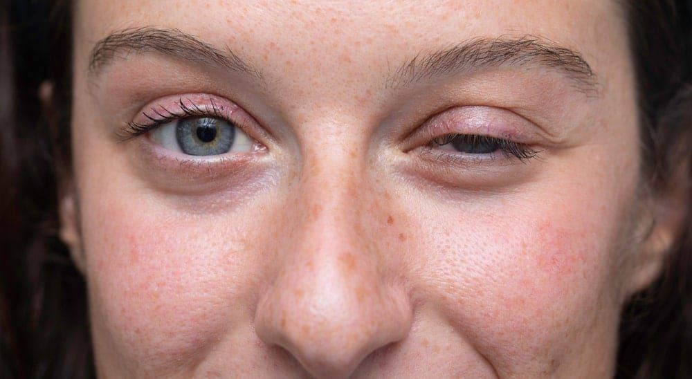 woman with dropping eyelid