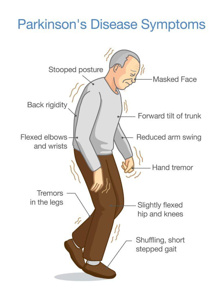 diagram showing parkinson's disease symptoms