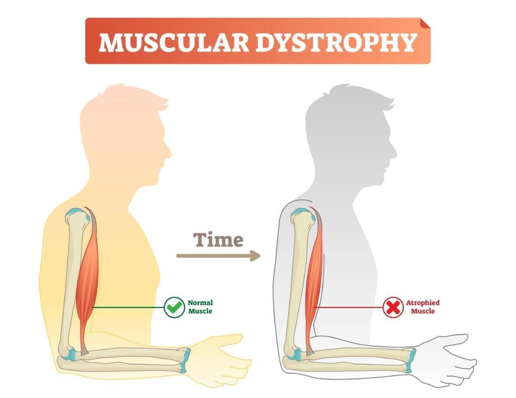 diagram showing muscle atrophy associated with muscular dystrophy