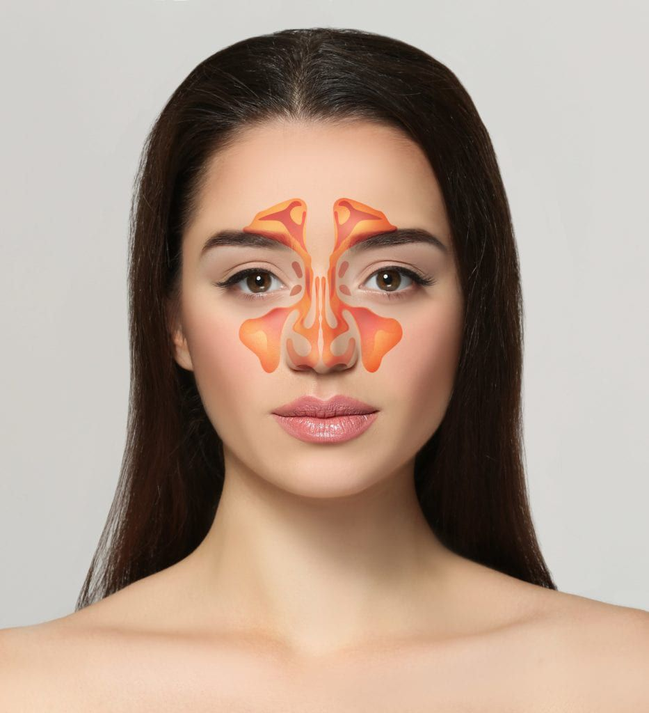 woman shown with sinuses