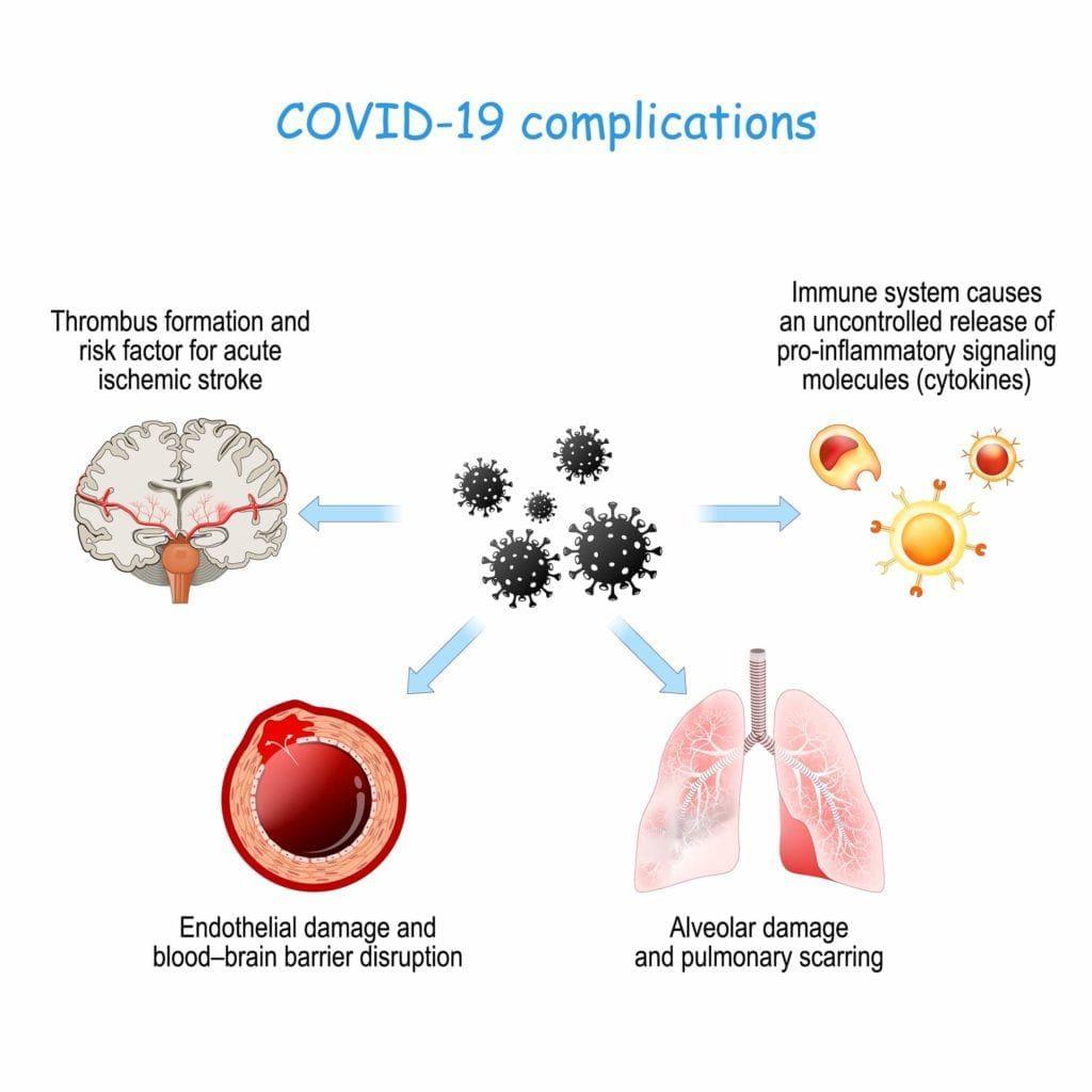covid-19 complications