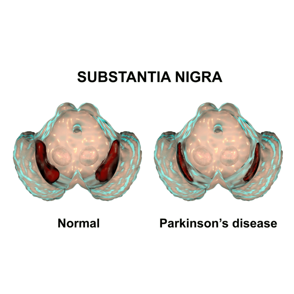 substantia nigra region of the brain with and without parkinson's disease