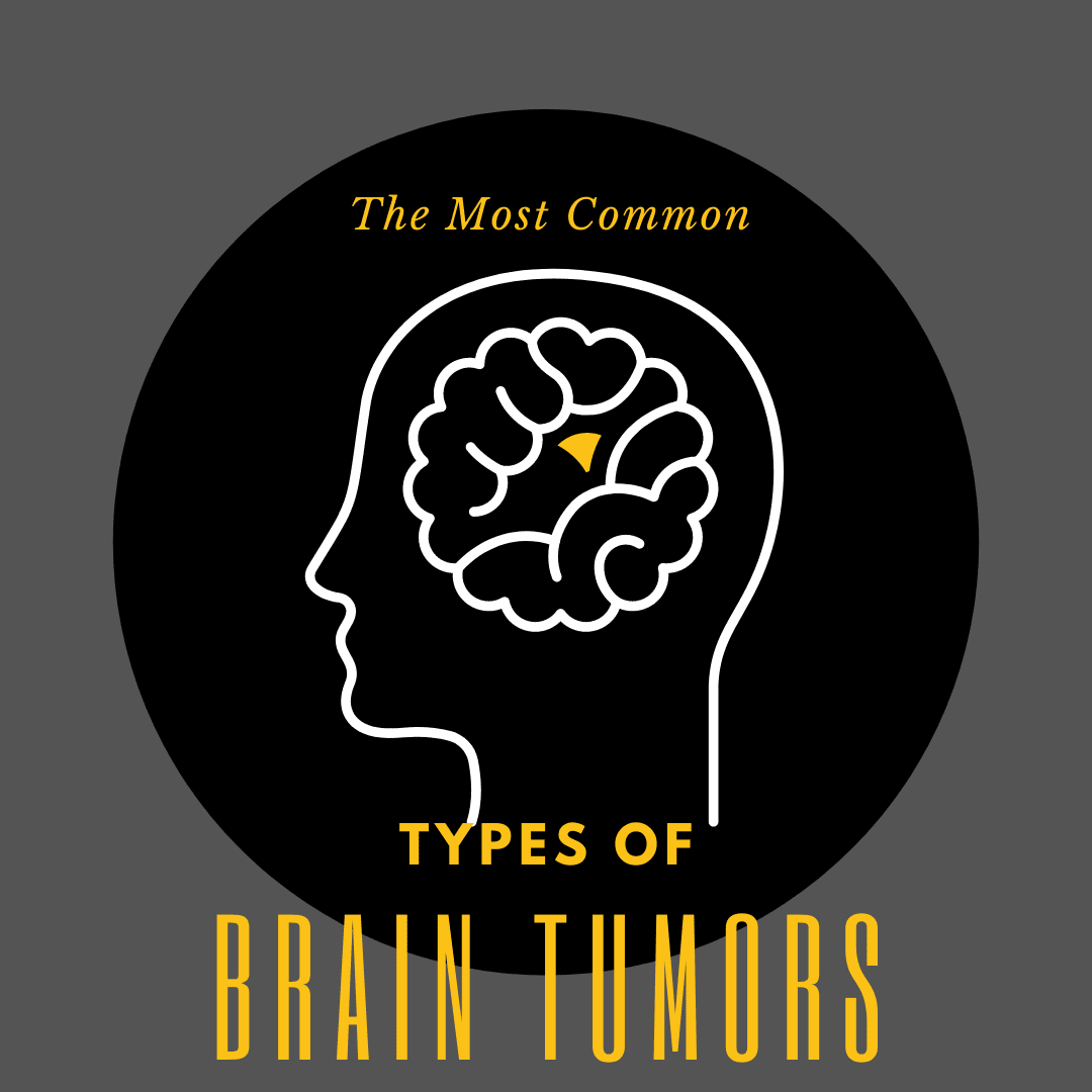 The Most Common types of brain tumors